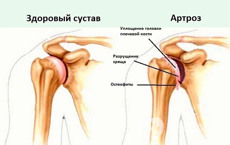Артроз плечевого сустава – симптомы, лечение, гимнастика, упражнения
