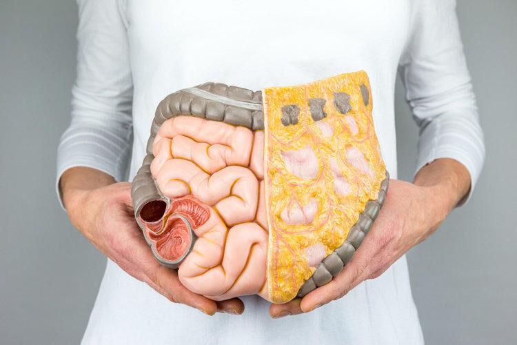 Рак кишечника – признаки и симптомы рака кишечника, стадии и лечение ...