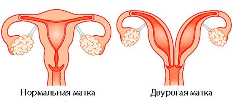 Двурогая матка — беременность, отзывы, фото
