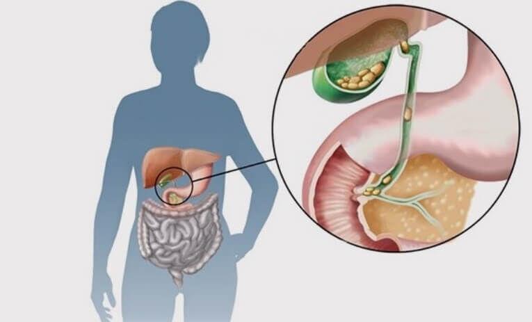 Желчнокаменная болезнь - лечение, симптомы, причины, профилактика