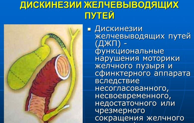 Дискинезия желчных путей фото
